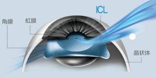 """屈光手术中的""""爱马仕""""——ICL晶体植入术"""