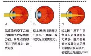 绍兴晚报-角膜塑形镜是什么可去听听上海专家讲座