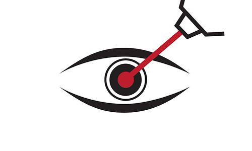 做近视手术时,想眨眼怎么办?