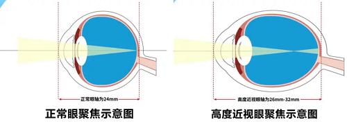 800度快瞎的我,在杭州爱尔眼科做完全飞秒手术后,竟然后悔死了!